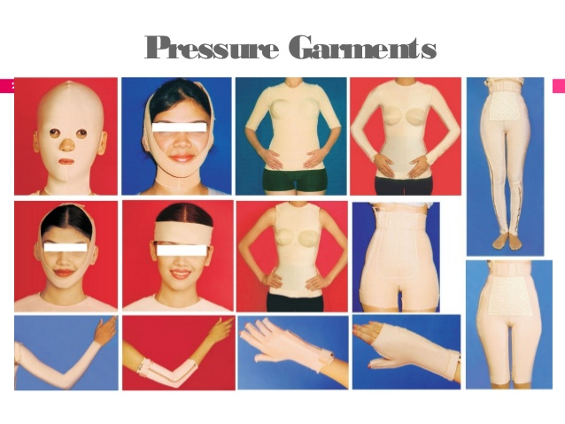 Pressure Garments And Compression Stockings Manufacturers In